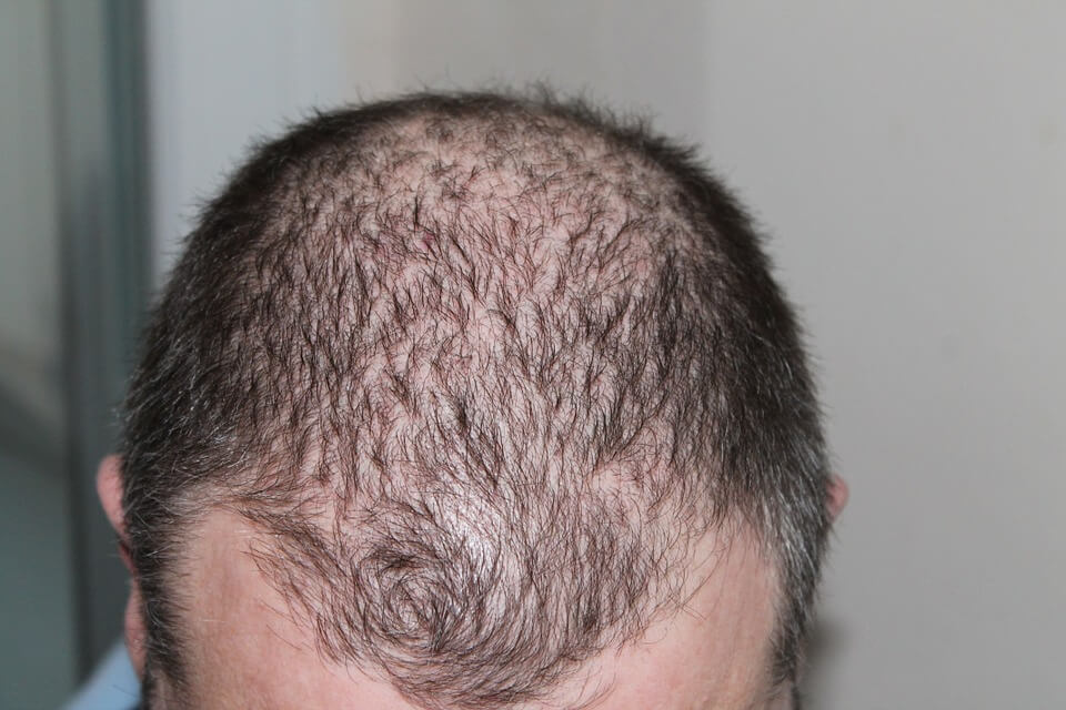 Hair Transplant in Hindi
